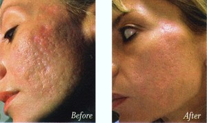 ERBIUM-LASER-ACNE-SCARRING-BEFORE-AFTER