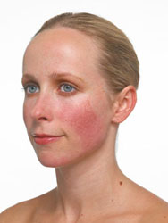 rosacea_before