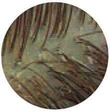 Normal-scalp